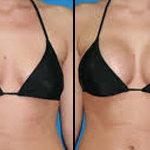 Breast Actives Buy Breast Actives In Canada Toronto Vancouver